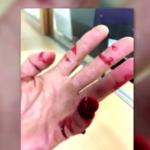 Un conductor ebrio arranca parte de un dedo a un Policía Local de Getafe en un control de alcoholemia
