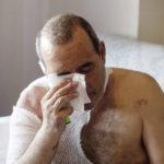 El primer maltratado con sosa cáustica hirviendo es un camionero que su mujer le dejó ciego y sordo